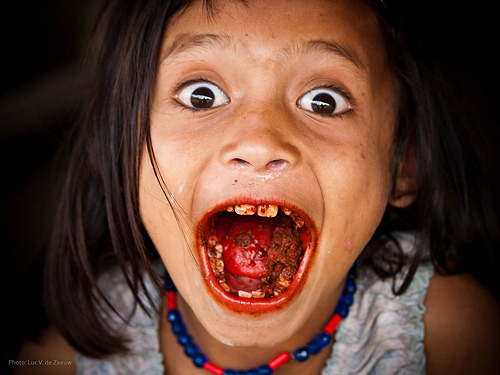 Red stained lips and teeth from constant chewing of betel nut–a